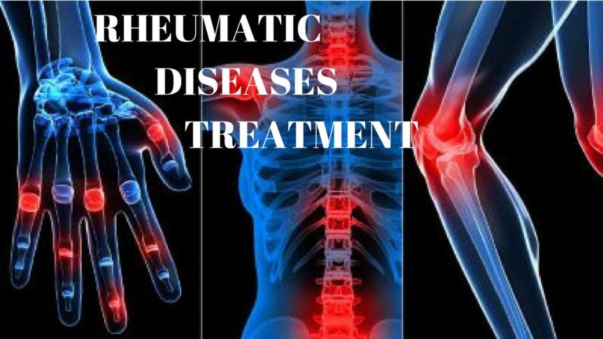 Rheumatic Diseases Treatment