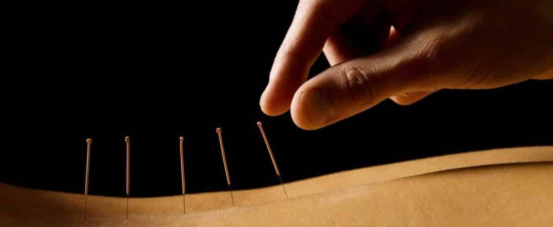 Acupuncture For Cancer Treatments Is Showing Positive Results