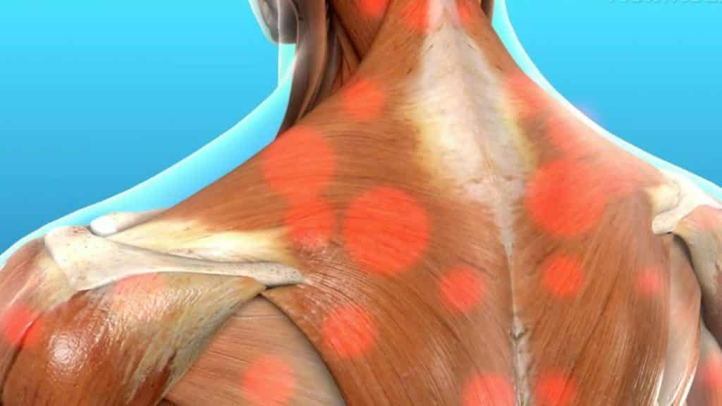 Myofascial Release Therapy Can Help When Treating Cancer